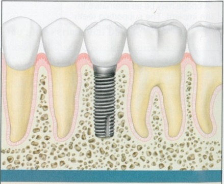 Understanding Boise Tooth Implants