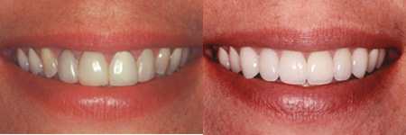 When to Choose a Best Smile Restoration