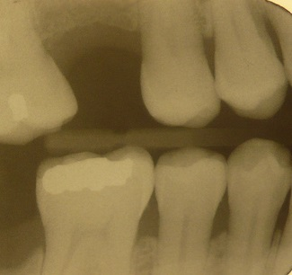 Replace Missing Teeth for Long Term Boise Dental Health!