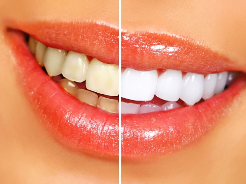 Boise Teeth Whitening Options to Brighten Your Smile