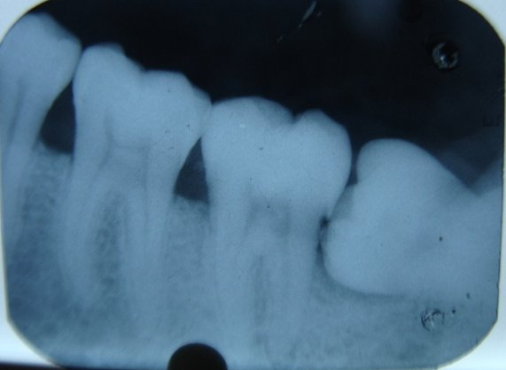 The Warning Signs of Impacted Wisdom Teeth