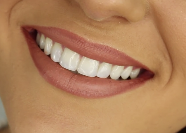 CEREC Crowns: A Single Boise Dental Treatment