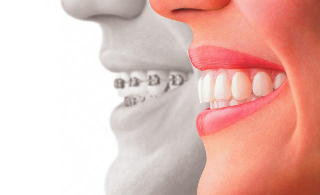 Transform Your Smile With Invisalign Restorations