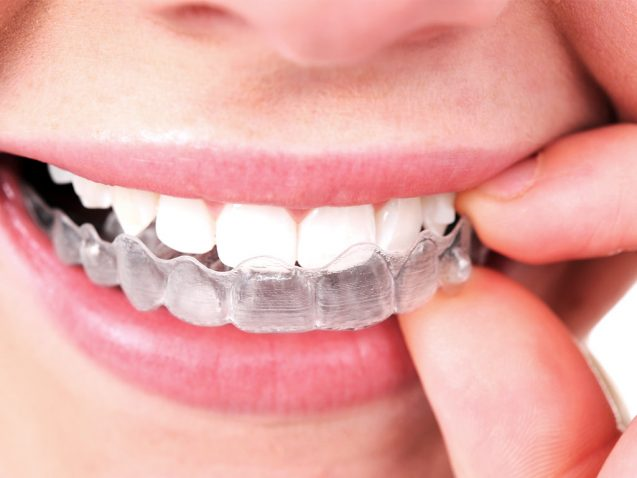 Boise Dental: Invisalign Solutions For Straightening Your Smile