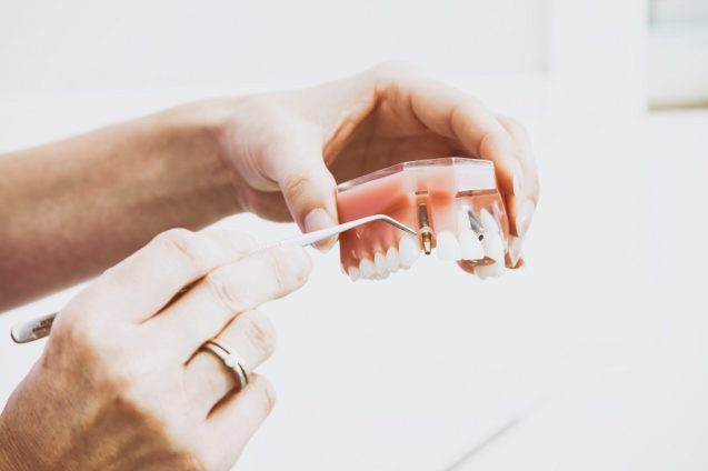 The Ultimate Guide To The Boise Dental Implant Process