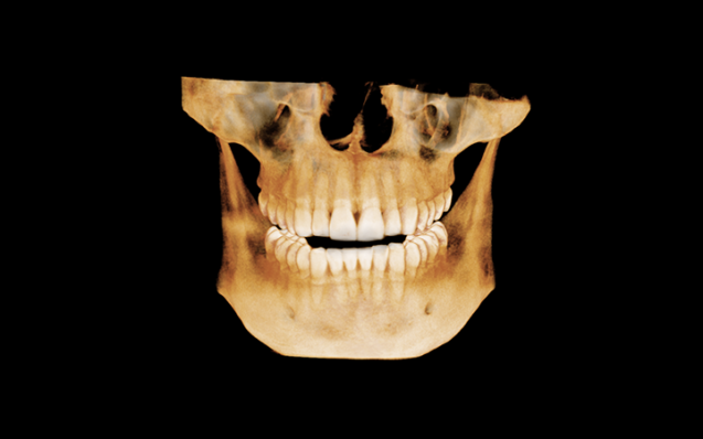 The Top Benefits Of Boise Dental 3D X-Rays