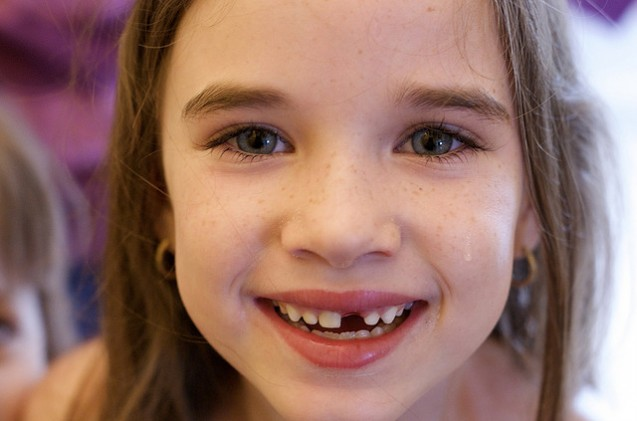 What To Do If Your Child Loses a Baby Tooth at School