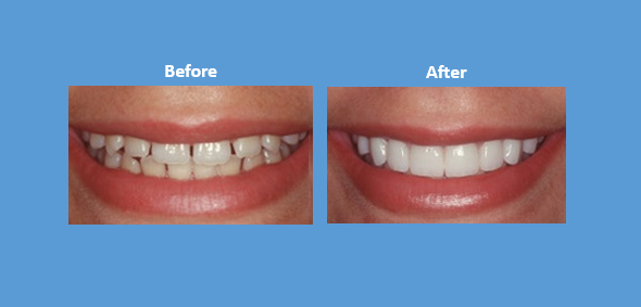 The Benefits Of A Full-Mouth Best Smile Restoration
