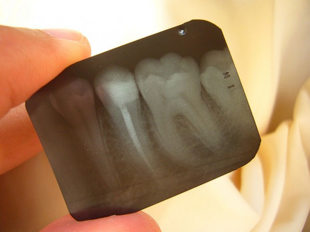 Taking the Fear out of Root Canal Therapy
