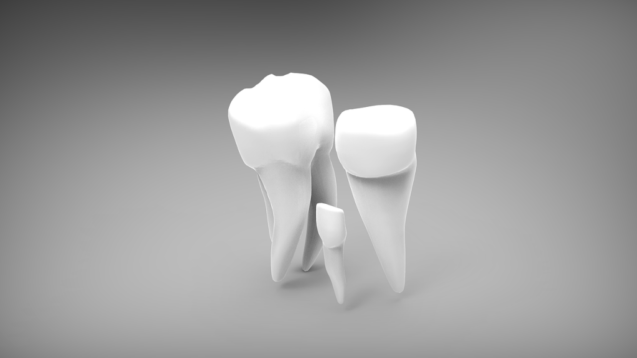 How Missing Teeth Can Affect Your Smile