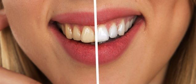 The Benefits Of An Boise Teeth Whitening Treatment